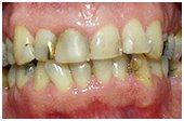 dental-loving-care-menu-pic411