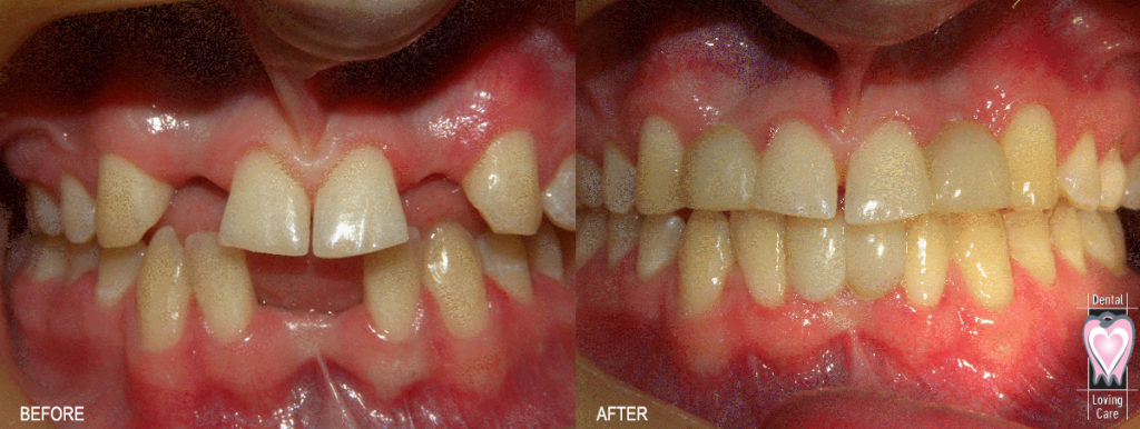 dental-loving-care_before-after18_mh
